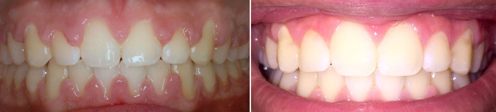 Gingival (Gum) Laser Recontouring Before After